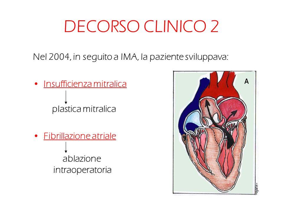DECORSO CLINICO 2 Nel 2004, in seguito a IMA, la paziente sviluppava: Insufficienza mitralica plastica mitralica Fibrillazione atriale ablazione intra