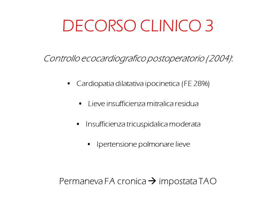 DECORSO CLINICO 3 Controllo ecocardiografico postoperatorio (2004): Cardiopatia dilatativa ipocinetica (FE 28%) Lieve insufficienza mitralica residua