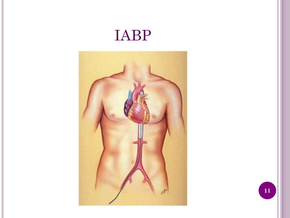 IABP 11
