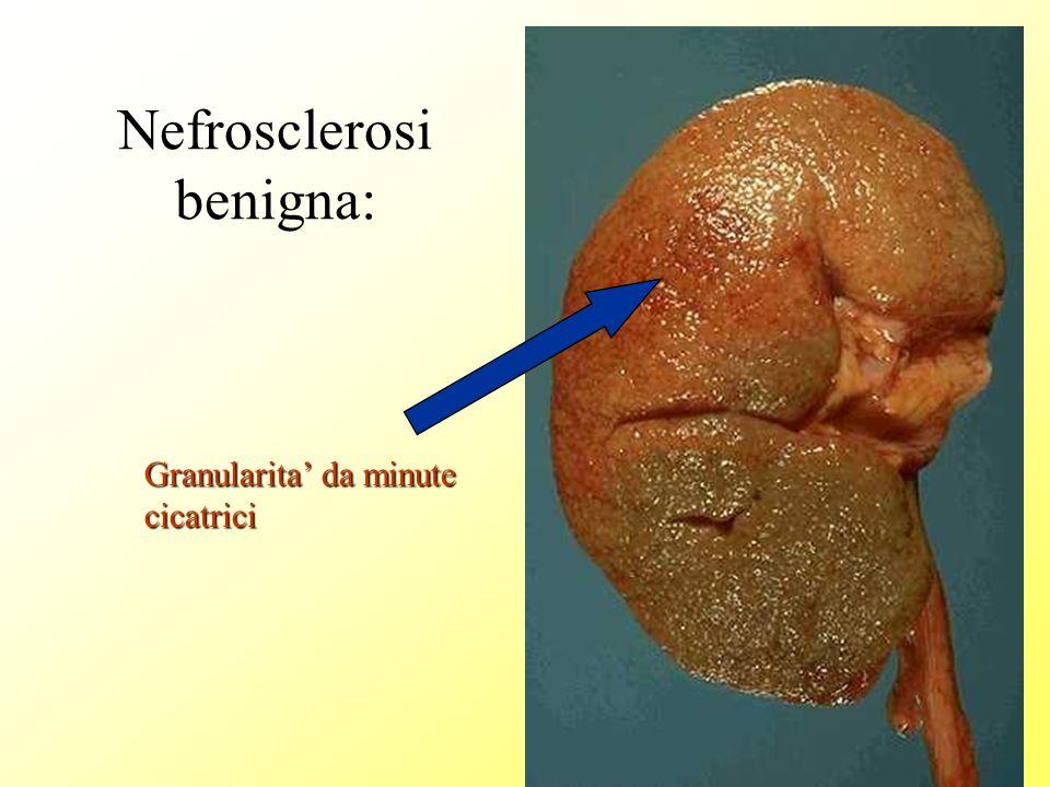 Nefrosclerosi benigna: Granularita da minute cicatrici