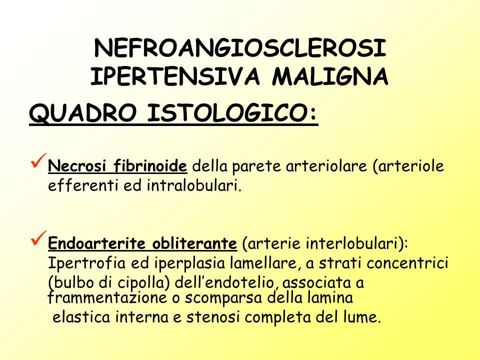 NEFROANGIOSCLEROSI IPERTENSIVA MALIGNA QUADRO ISTOLOGICO: Necrosi fibrinoide della parete arteriolare (arteriole efferenti ed intralobulari. Endoarter