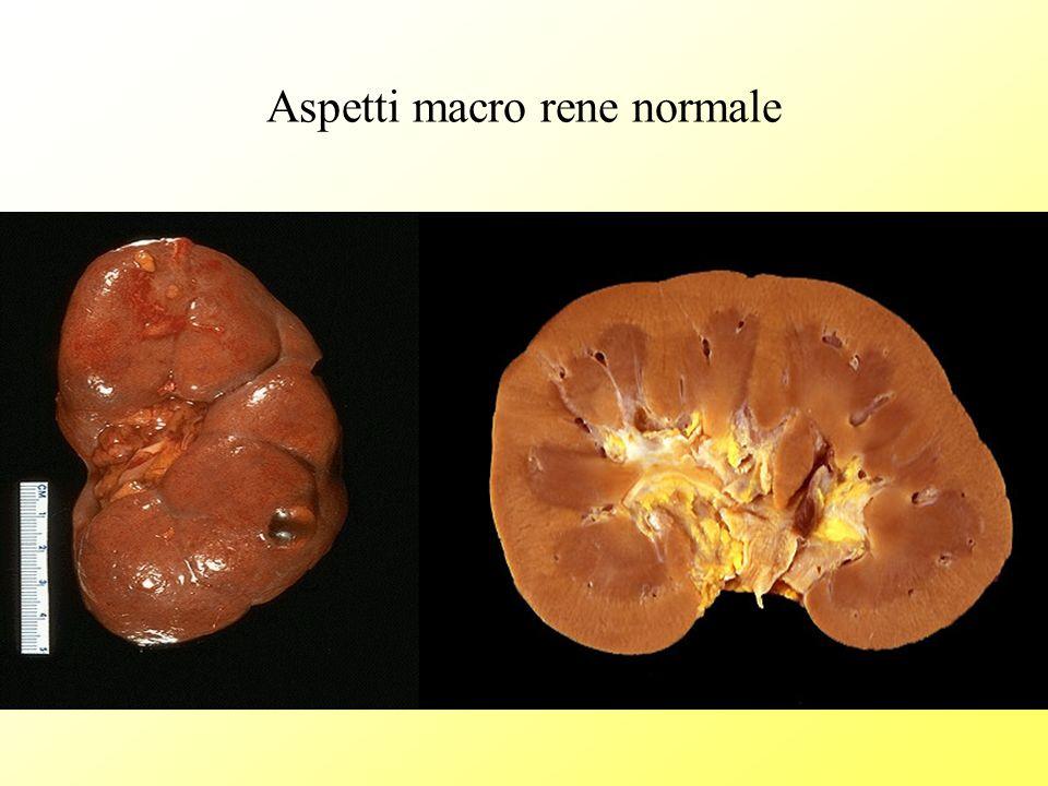 La regola del 4 nel rene macro Glomeruli: filtrazione Tubuli:riassorbimento Vasi: nutrimento Interstizio: supporto, chemochine