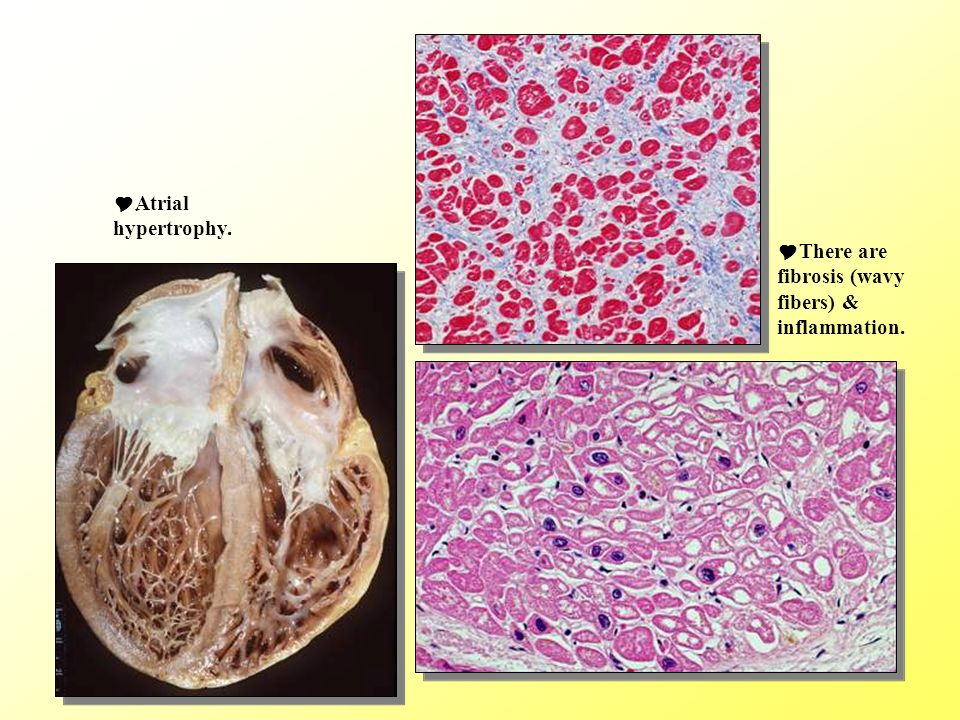 There are fibrosis (wavy fibers) & inflammation. ِAtrial hypertrophy.