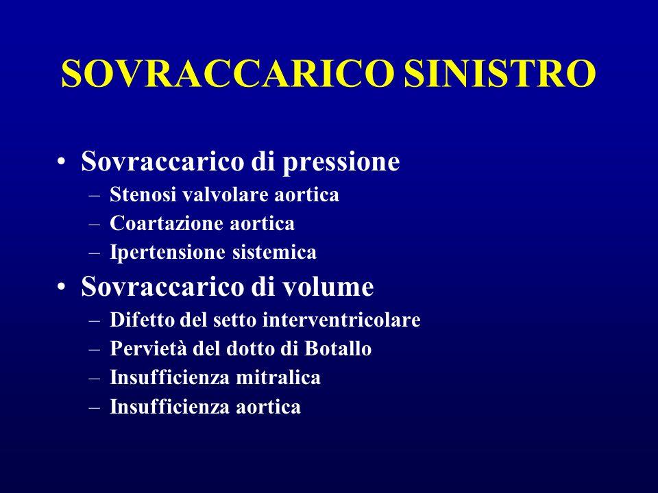 SOVRACCARICO SINISTRO Sovraccarico di pressione –Stenosi valvolare aortica –Coartazione aortica –Ipertensione sistemica Sovraccarico di volume –Difett