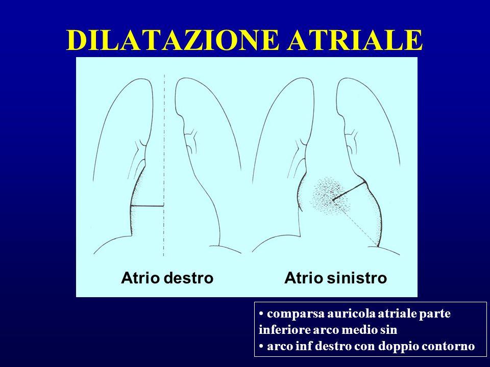 DILATAZIONE ATRIALE Atrio destroAtrio sinistro comparsa auricola atriale parte inferiore arco medio sin arco inf destro con doppio contorno