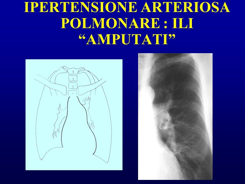 IPERTENSIONE ARTERIOSA POLMONARE : ILI AMPUTATI