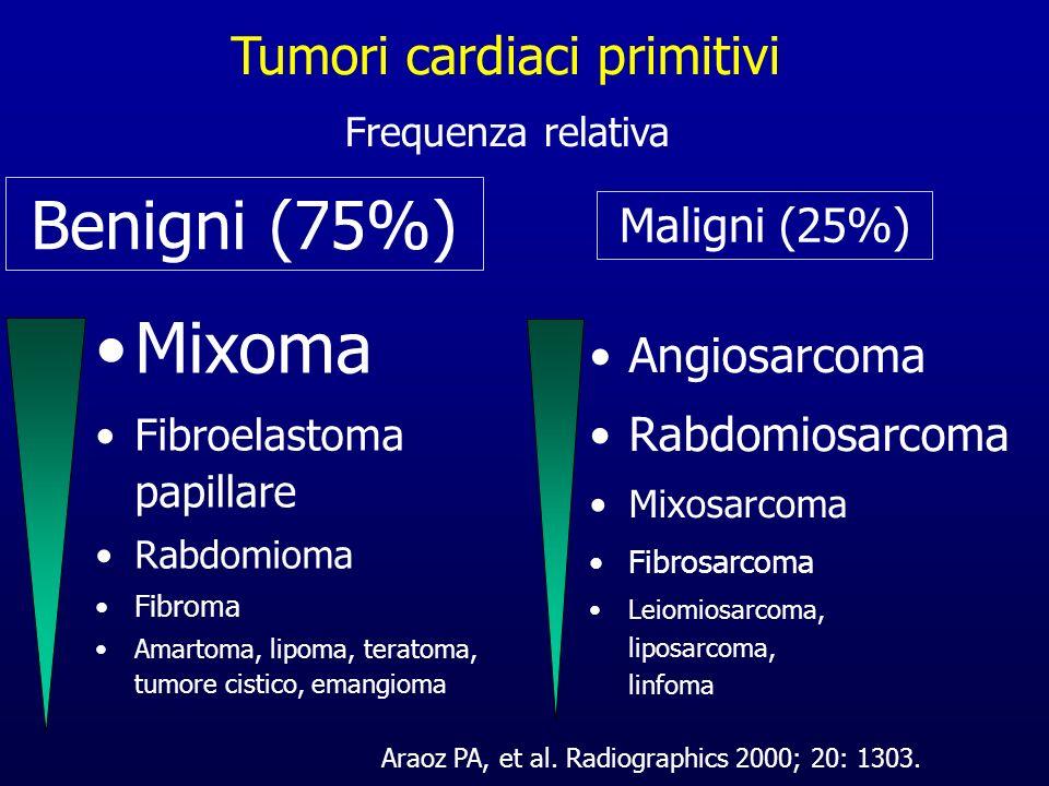 Mixoma Fibroelastoma papillare Rabdomioma Fibroma Amartoma, lipoma, teratoma, tumore cistico, emangioma Frequenza relativa Benigni (75%) Angiosarcoma