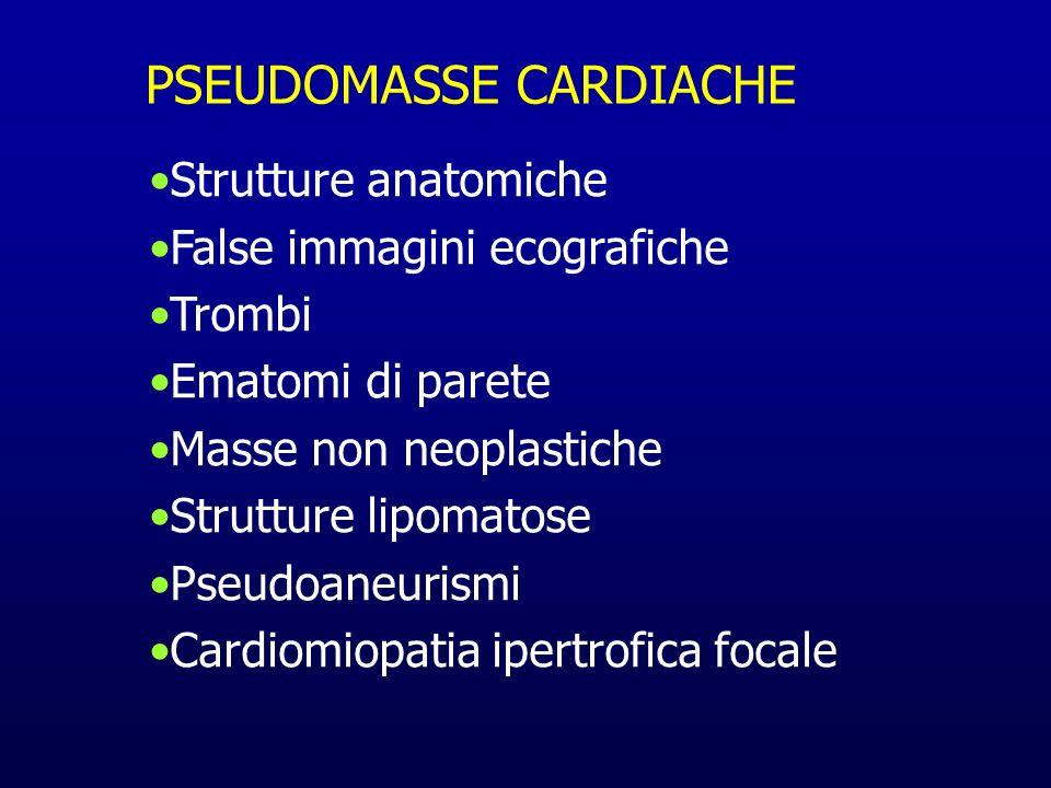 PSEUDOMASSE CARDIACHE Strutture anatomiche False immagini ecografiche Trombi Ematomi di parete Masse non neoplastiche Strutture lipomatose Pseudoaneur