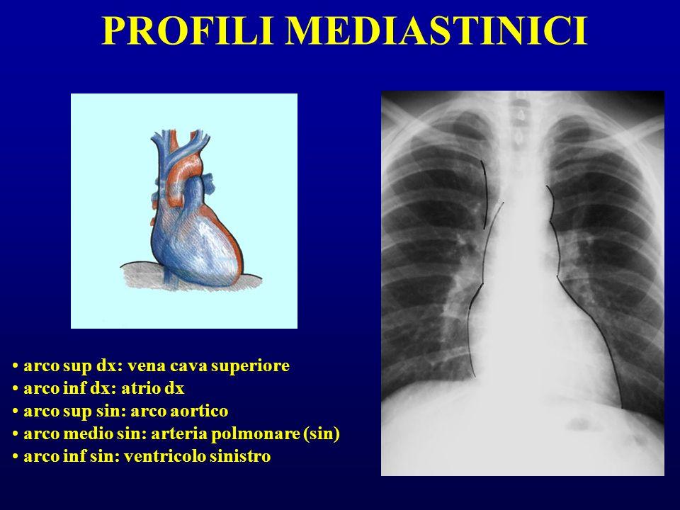 PROFILI MEDIASTINICI arco sup dx: vena cava superiore arco inf dx: atrio dx arco sup sin: arco aortico arco medio sin: arteria polmonare (sin) arco in
