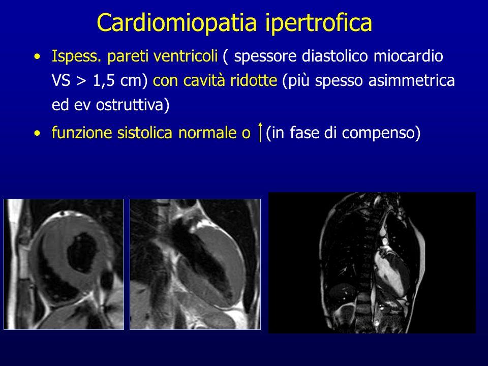 Ispess. pareti ventricoli ( spessore diastolico miocardio VS > 1,5 cm) con cavità ridotte (più spesso asimmetrica ed ev ostruttiva) funzione sistolica