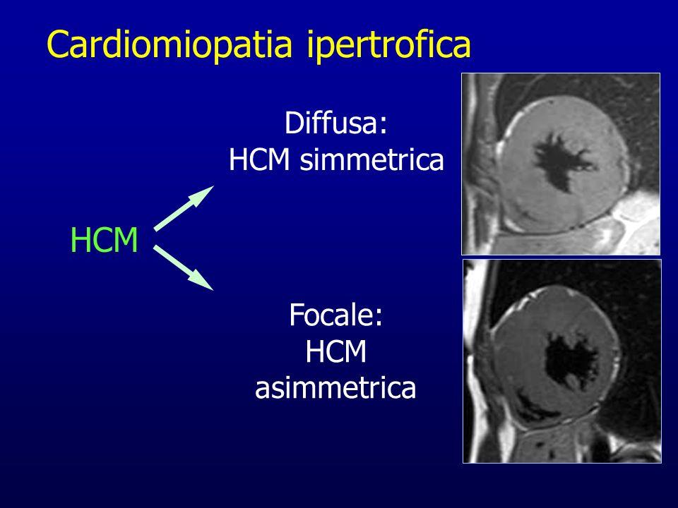 HCM Diffusa: HCM simmetrica Focale: HCM asimmetrica Cardiomiopatia ipertrofica