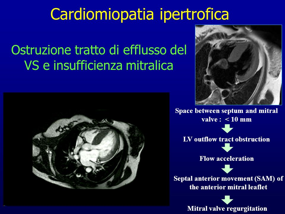 Ostruzione tratto di efflusso del VS e insufficienza mitralica Space between septum and mitral valve : < 10 mm LV outflow tract obstruction Flow accel