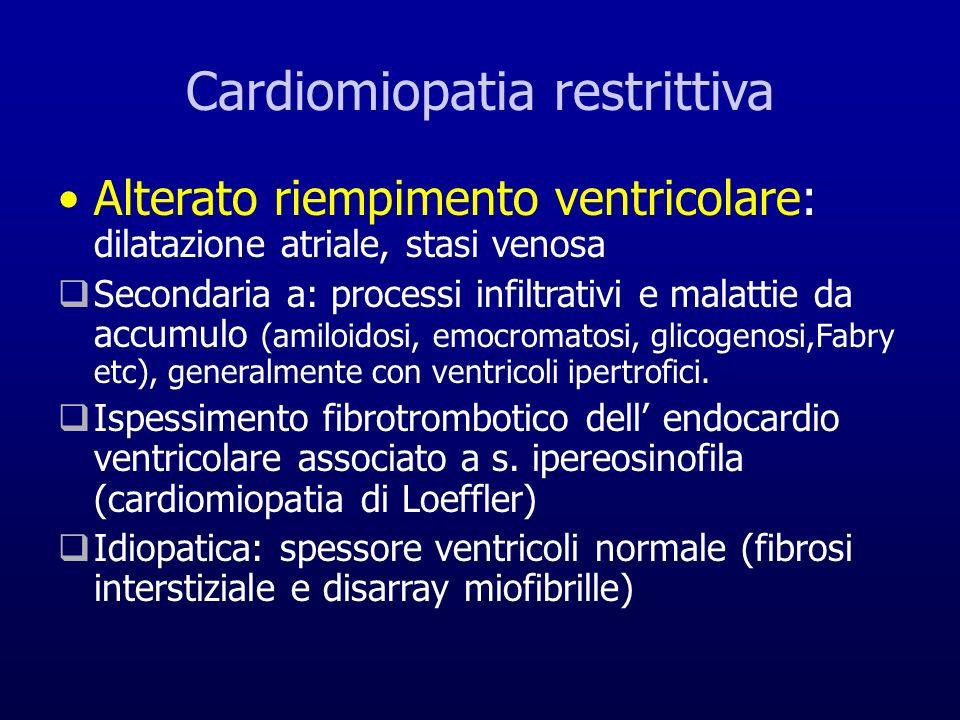 Cardiomiopatia restrittiva Alterato riempimento ventricolare: dilatazione atriale, stasi venosa Secondaria a: processi infiltrativi e malattie da accu