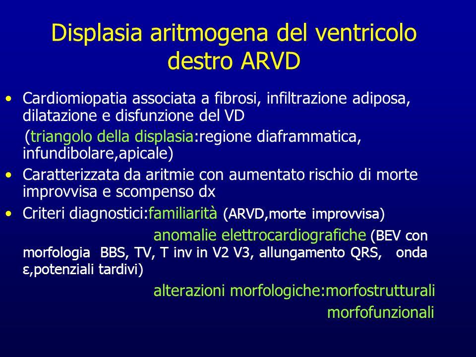 Displasia aritmogena del ventricolo destro ARVD Cardiomiopatia associata a fibrosi, infiltrazione adiposa, dilatazione e disfunzione del VD (triangolo