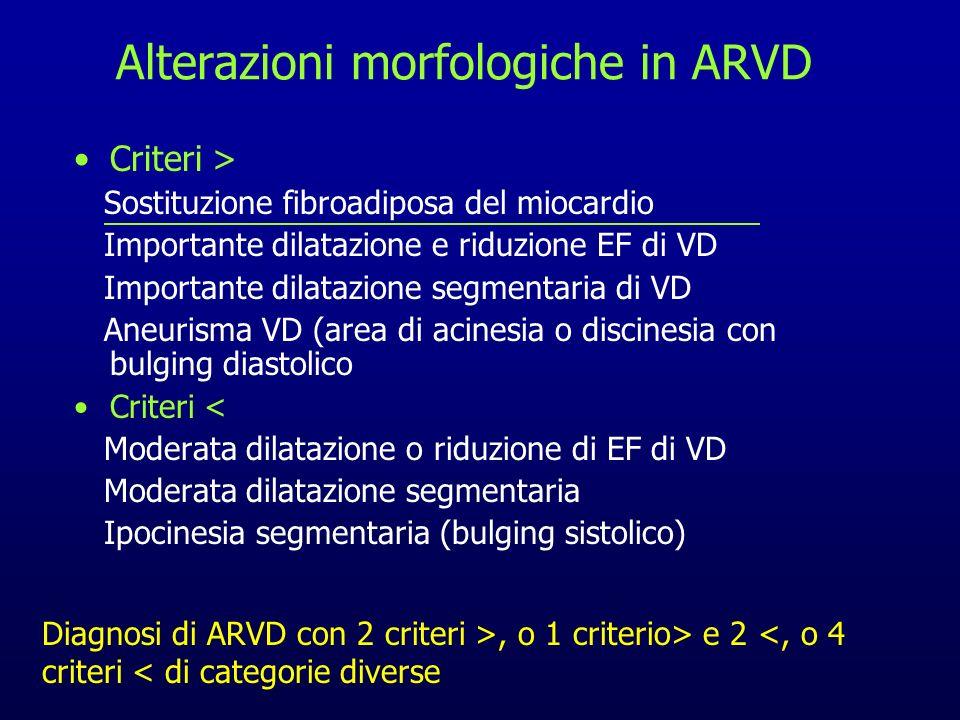 Alterazioni morfologiche in ARVD Criteri > Sostituzione fibroadiposa del miocardio Importante dilatazione e riduzione EF di VD Importante dilatazione