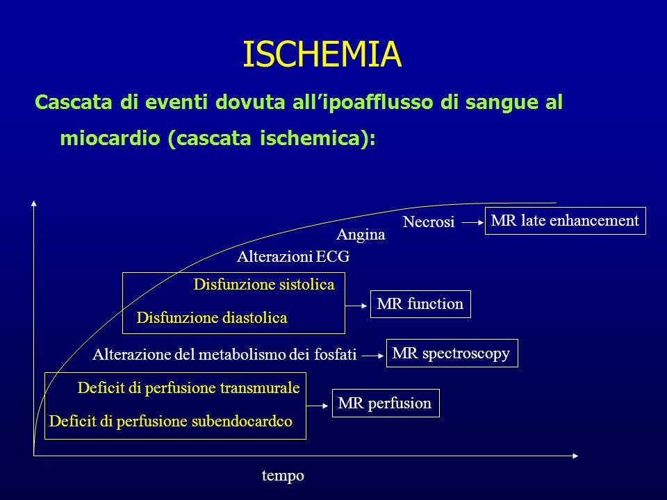 Cascata di eventi dovuta allipoafflusso di sangue al miocardio (cascata ischemica): ISCHEMIA Deficit di perfusione subendocardco Deficit di perfusione
