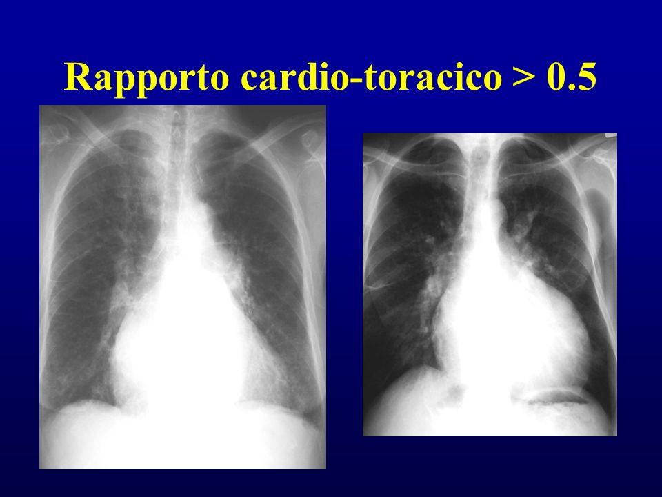 Rapporto cardio-toracico > 0.5