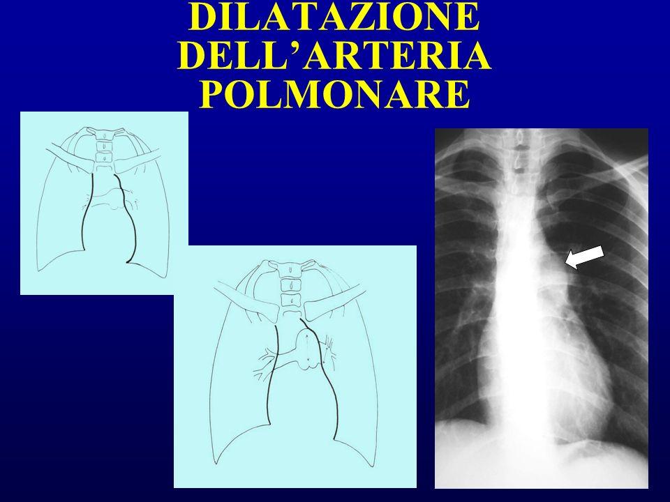 DILATAZIONE DELLARTERIA POLMONARE