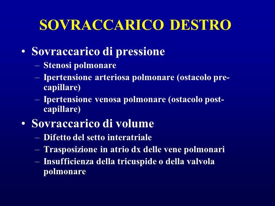 SOVRACCARICO DESTRO Sovraccarico di pressione –Stenosi polmonare –Ipertensione arteriosa polmonare (ostacolo pre- capillare) –Ipertensione venosa polm