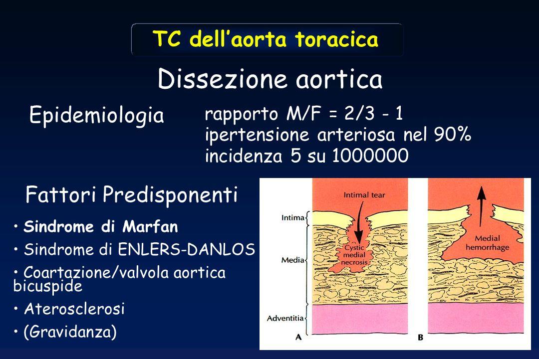 Dissezione aortica Epidemiologia rapporto M/F = 2/3 - 1 ipertensione arteriosa nel 90% incidenza 5 su 1000000 TC dellaorta toracica Sindrome di Marfan