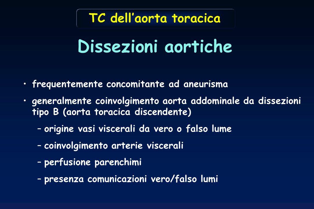 frequentemente concomitante ad aneurisma generalmente coinvolgimento aorta addominale da dissezioni tipo B (aorta toracica discendente) –origine vasi