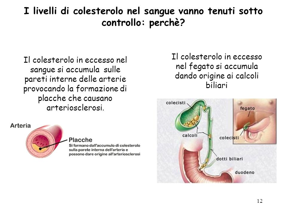 12 Il colesterolo in eccesso nel sangue si accumula sulle pareti interne delle arterie provocando la formazione di placche che causano arteriosclerosi