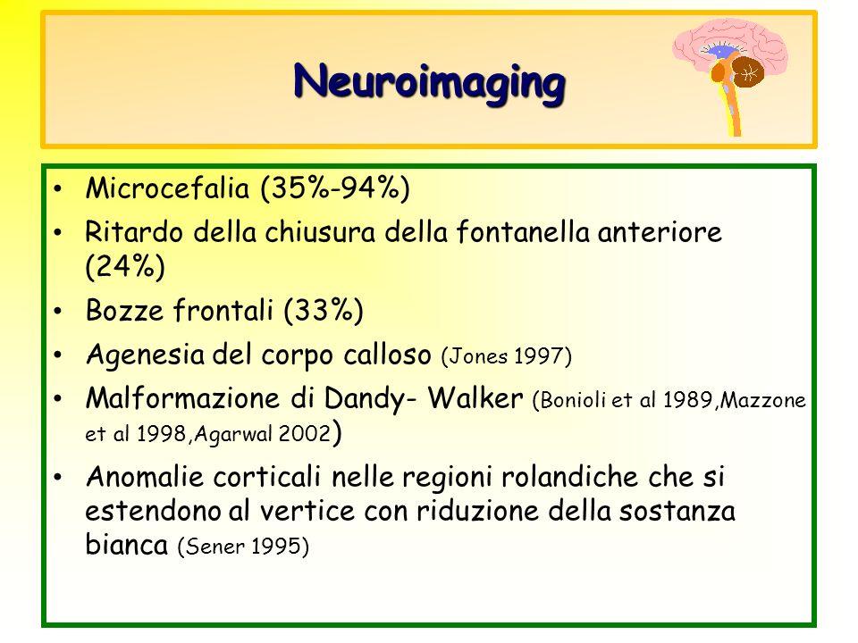 Neuroimaging Microcefalia (35%-94%) Ritardo della chiusura della fontanella anteriore (24%) Bozze frontali (33%) Agenesia del corpo calloso (Jones 199