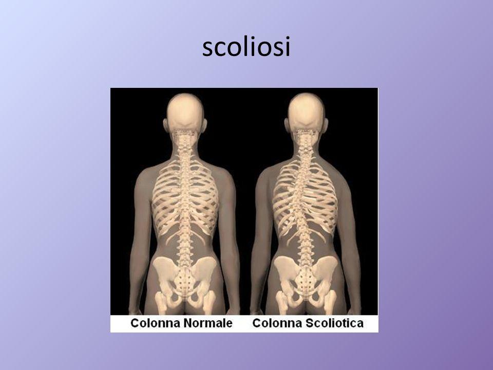 scoliosi
