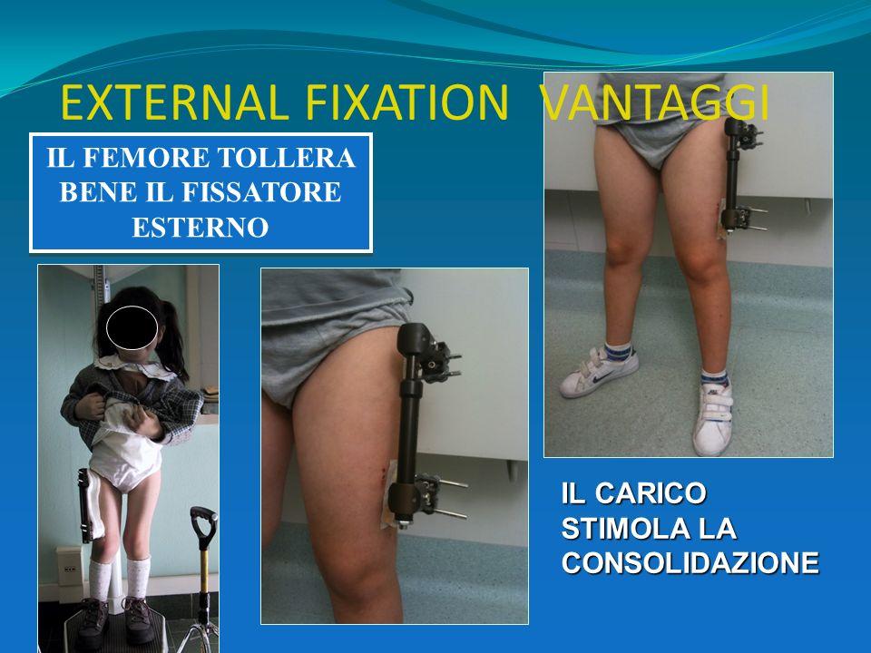 IL FEMORE TOLLERA BENE IL FISSATORE ESTERNO EXTERNAL FIXATION VANTAGGI IL CARICO STIMOLA LA CONSOLIDAZIONE