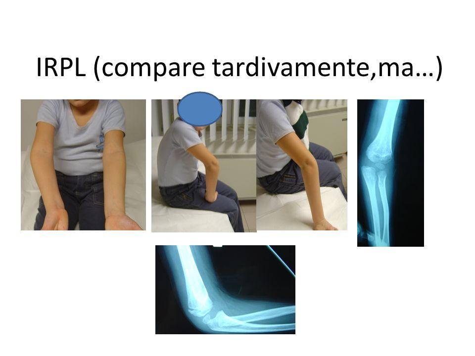 IRPL (compare tardivamente,ma…)