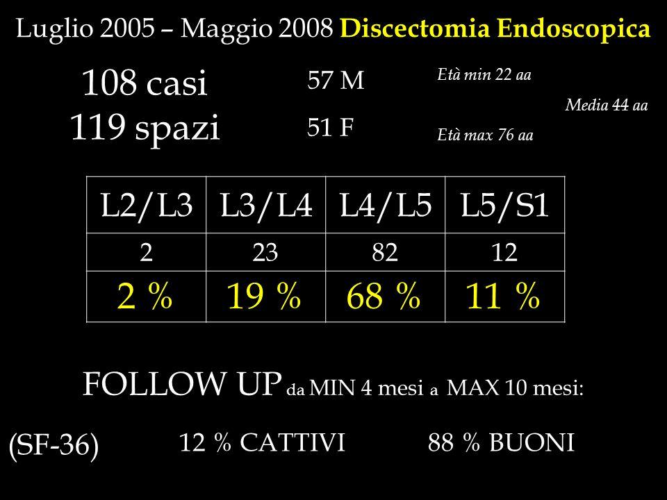 108 casi 119 spazi Età min 22 aa Età max 76 aa Luglio 2005 – Maggio 2008 Discectomia Endoscopica 57 M 51 F L2/L3L3/L4L4/L5L5/S1 2238212 2 %19 %68 %11