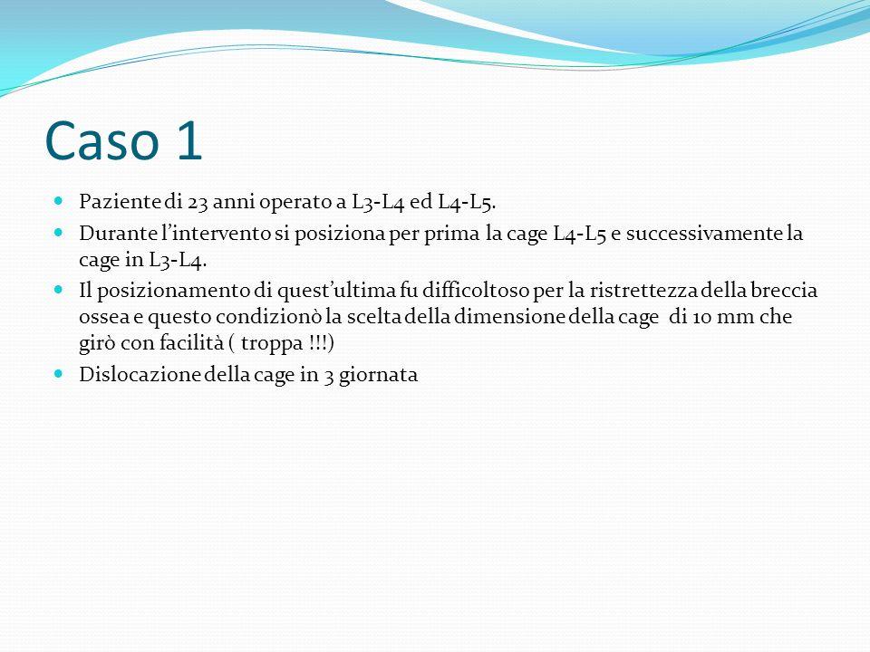Caso 1 Paziente di 23 anni operato a L3-L4 ed L4-L5. Durante lintervento si posiziona per prima la cage L4-L5 e successivamente la cage in L3-L4. Il p