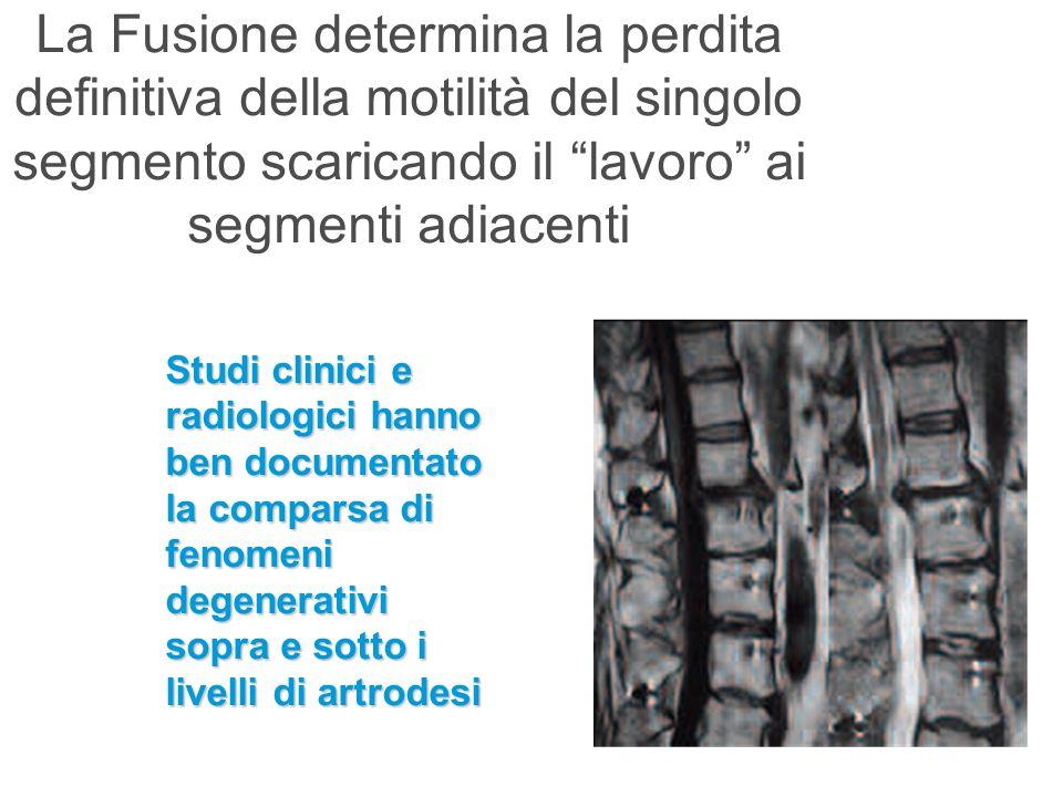 La Fusione determina la perdita definitiva della motilità del singolo segmento scaricando il lavoro ai segmenti adiacenti Studi clinici e radiologici
