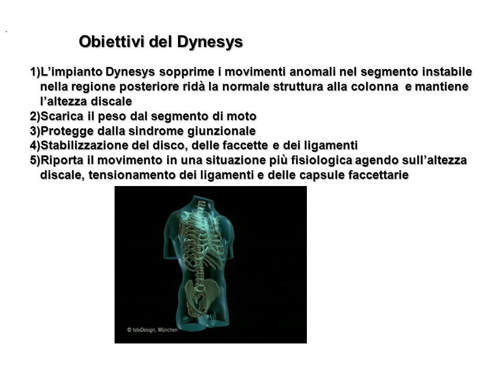 . 1)Limpianto Dynesys sopprime i movimenti anomali nel segmento instabile nella regione posteriore ridà la normale struttura alla colonna e mantiene n