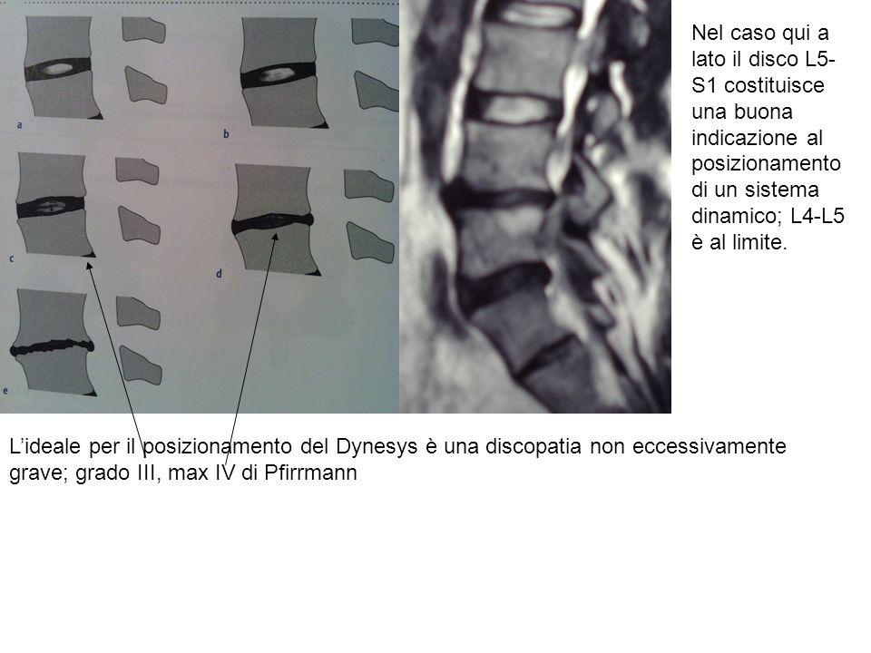 Lideale per il posizionamento del Dynesys è una discopatia non eccessivamente grave; grado III, max IV di Pfirrmann Nel caso qui a lato il disco L5- S