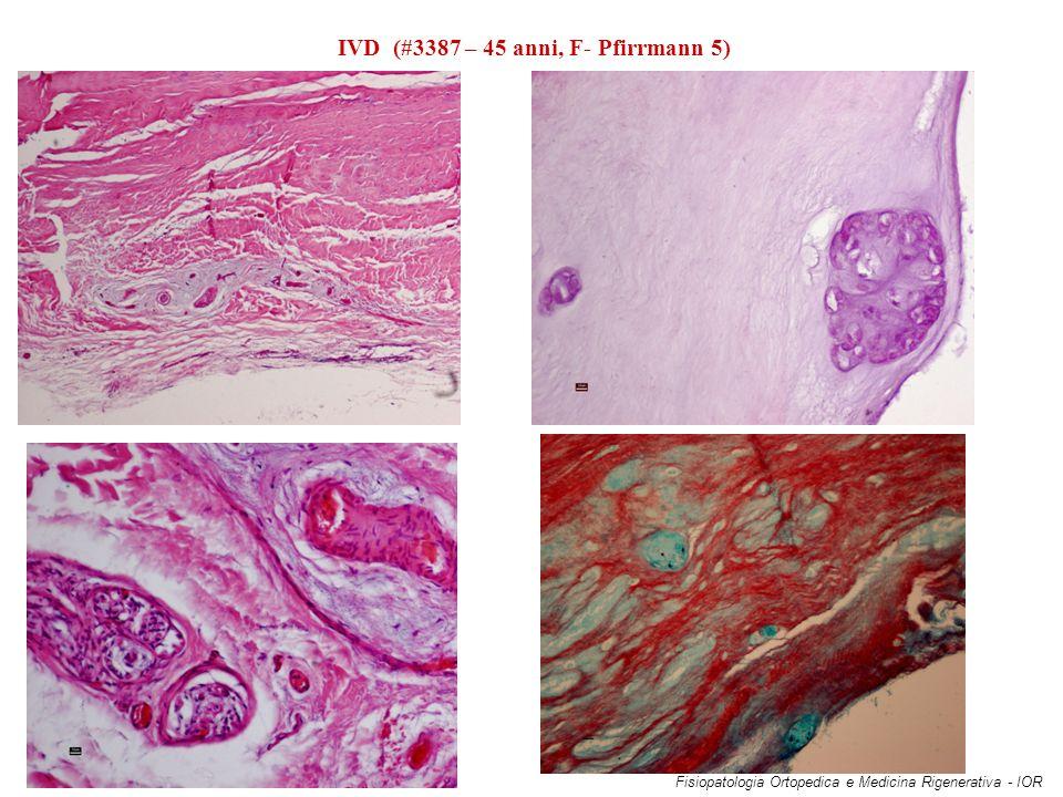 IVD (#3387 – 45 anni, F- Pfirrmann 5) Fisiopatologia Ortopedica e Medicina Rigenerativa - IOR