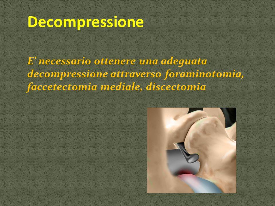 Decompressione E necessario ottenere una adeguata decompressione attraverso foraminotomia, faccetectomia mediale, discectomia