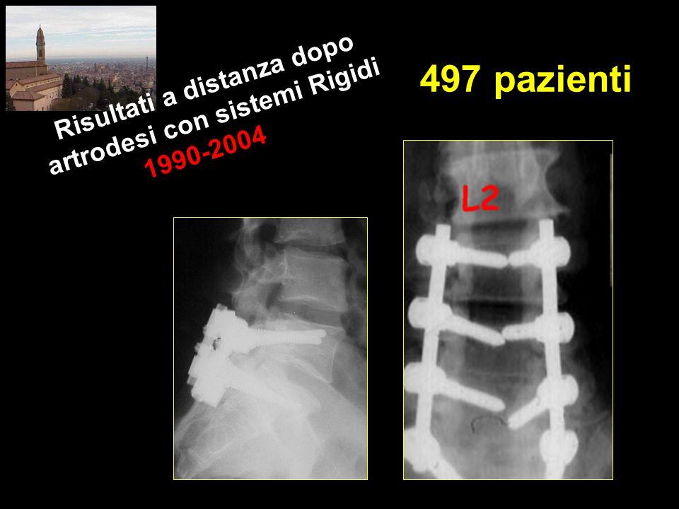 497 pazienti Risultati a distanza dopo artrodesi con sistemi Rigidi 1990-2004