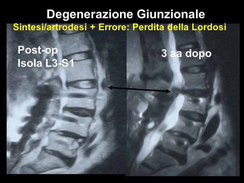 Post-op Isola L3-S1 3 aa dopo Denerazione Giunzionale Degenerazione Giunzionale Sintesi/artrodesi + Errore: Perdita della Lordosi