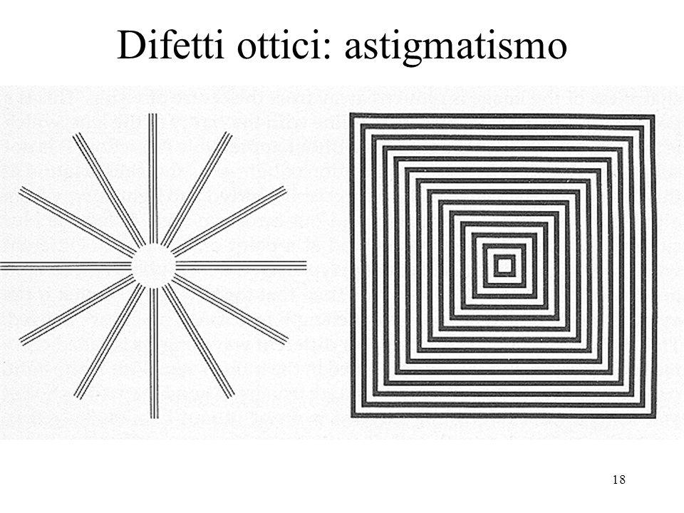 18 Difetti ottici: astigmatismo