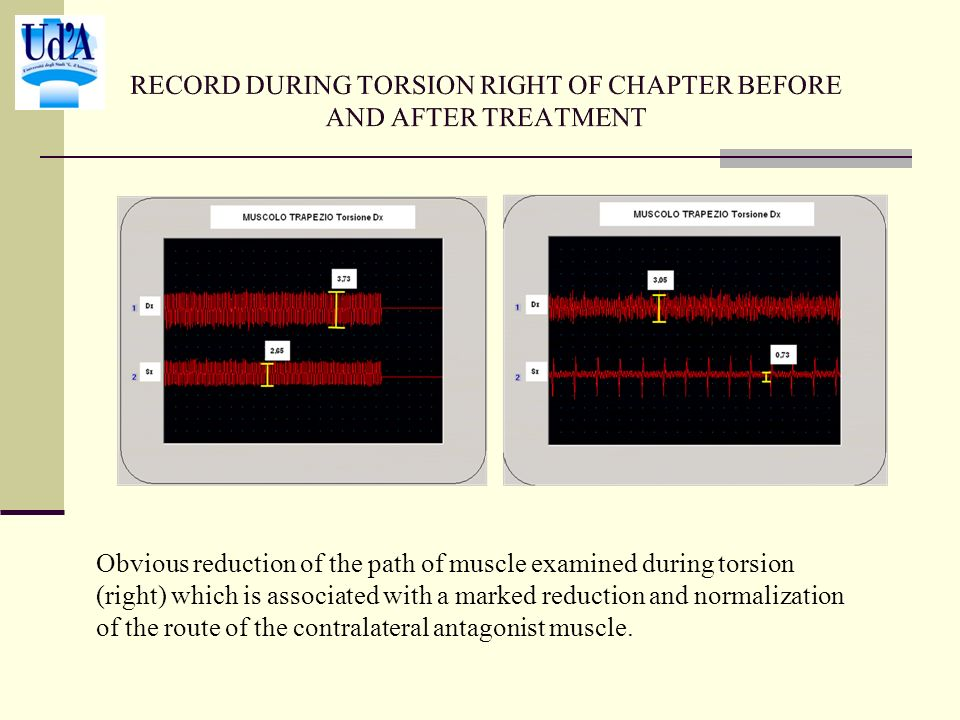 Obvious reduction of the path of muscle examined during torsion (right) which is associated with a marked reduction and normalization of the route of the contralateral antagonist muscle.