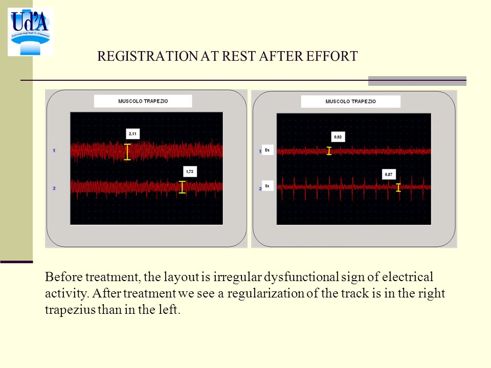 Before treatment, the layout is irregular dysfunctional sign of electrical activity.