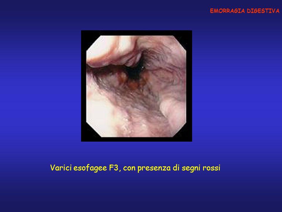 Varici esofagee F3, con presenza di segni rossi EMORRAGIA DIGESTIVA