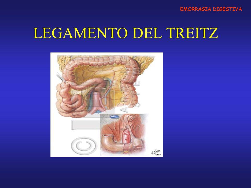 Classificazione in base alla sede Ulcera duodenale o gastrica (50%) Gastropatia erosivo emorragica (10%) Neoplasie esofagee, gastriche, orofaringee (10%) Esofagiti Varici esofago-gastriche (20%) Sindrome di Mallory-Weiss (2-5%) SUPERIORI (sopra il Legamento di Treitz) Malformazioni vascolari Emobilia Lesione di Dieulafoy Sangue di provenienza orofaringea deglutito