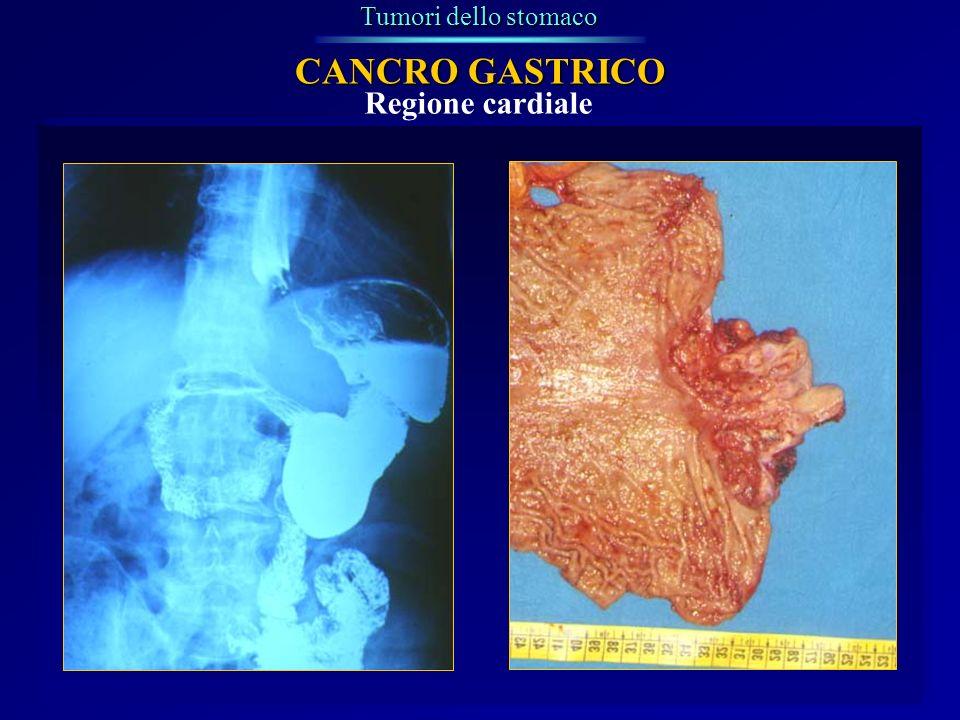 Regione cardiale Tumori dello stomaco CANCRO GASTRICO