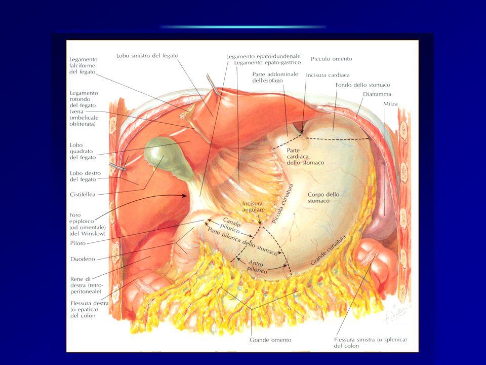 Chirurgia ad intento curativo Tumori dello stomaco CANCRO GASTRICO Gastrectomia totale: Exeresi di tutto lo stomaco, di una parte di duodeno, dellesofago addominale, di piccolo e grande epiploon con linfoadenectomia associata.