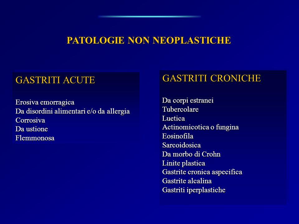 PATOLOGIE NON NEOPLASTICHE GASTRITI ACUTE Erosiva emorragica Da disordini alimentari e/o da allergia Corrosiva Da ustione Flemmonosa GASTRITI ACUTE Er