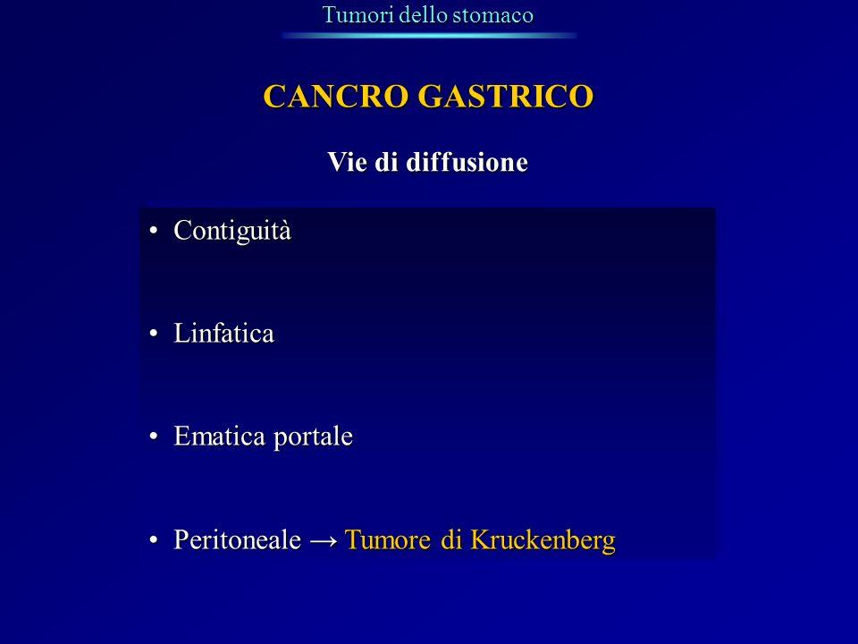 Tumori dello stomaco CANCRO GASTRICO Vie di diffusione ContiguitàContiguità LinfaticaLinfatica Ematica portaleEmatica portale Peritoneale Tumore di Kr