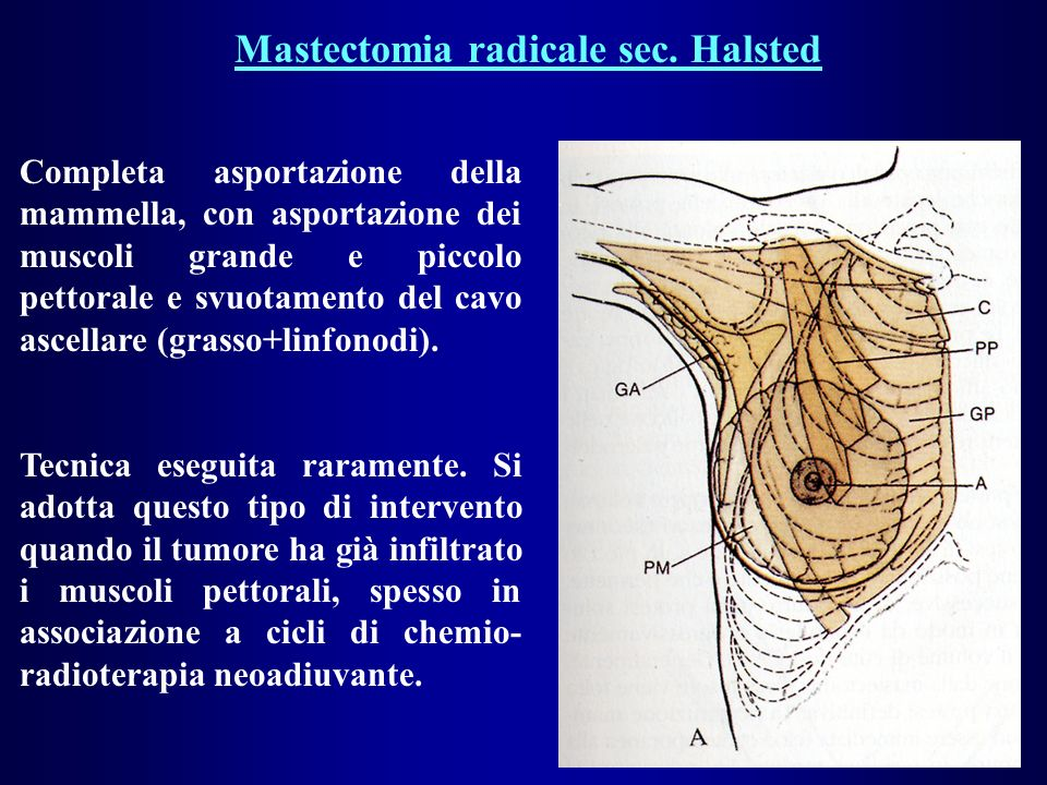 Mastectomia radicale sec. Halsted Completa asportazione della mammella, con asportazione dei muscoli grande e piccolo pettorale e svuotamento del cavo