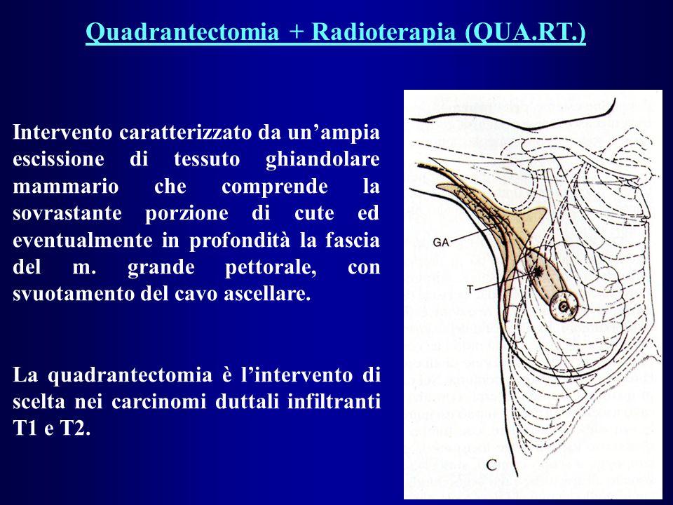 Quadrantectomia + Radioterapia (QUA.RT.) Intervento caratterizzato da unampia escissione di tessuto ghiandolare mammario che comprende la sovrastante porzione di cute ed eventualmente in profondità la fascia del m.
